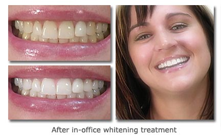 After in-office whitening treatment
